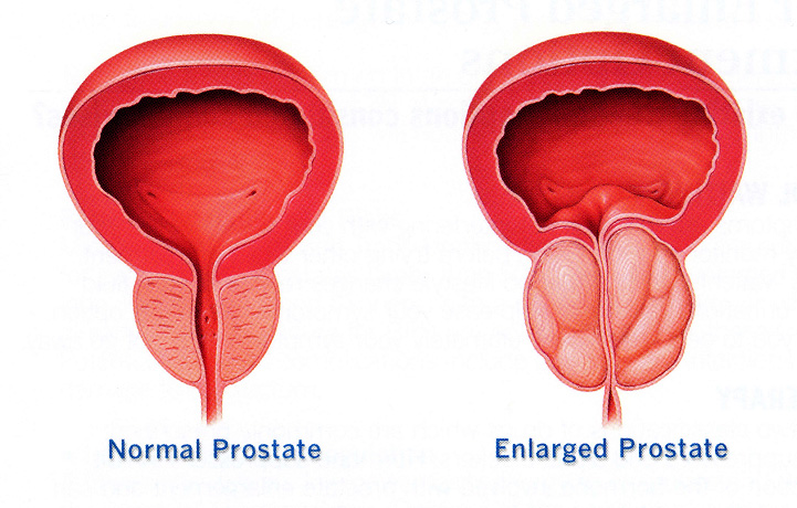 Benign prostatic enlargement